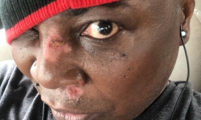 Charly Boy Scooter accident