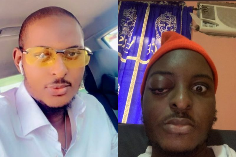Reactions as Fayabeats narrates experience of surviving three cancerous ailments in one year